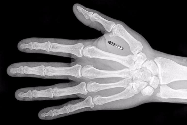 Плюсы и минусы внедрения чипов под кожу